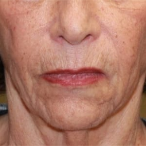 Regenerate with Fractionated Laser for Skin Retexturing