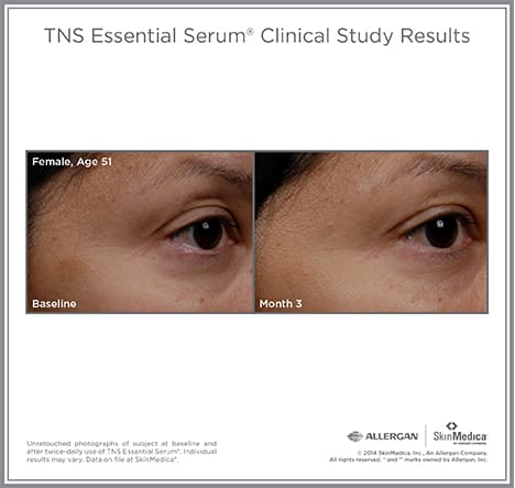 GetImage-tns-before-and-after