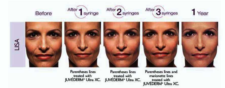 Juvederm-Lisa-Photos-and-After-One-year