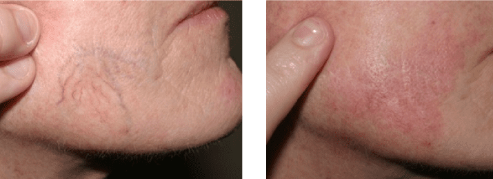 Telangiectasia-before-after