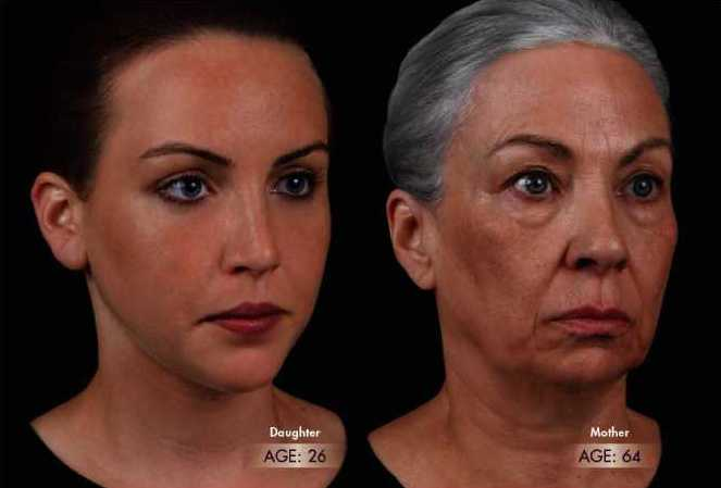 changes-in-Facial-contour