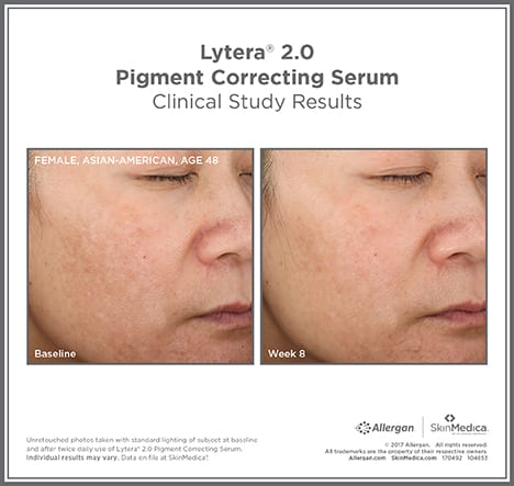 lytera-before-and-after